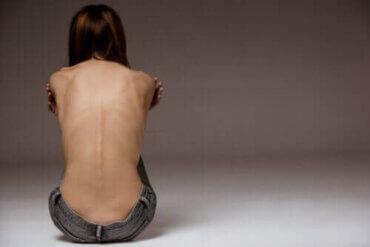 サドレキシア:一般的になりつつある摂食障害