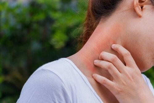 皮膚炎とコルチコステロイドの関係